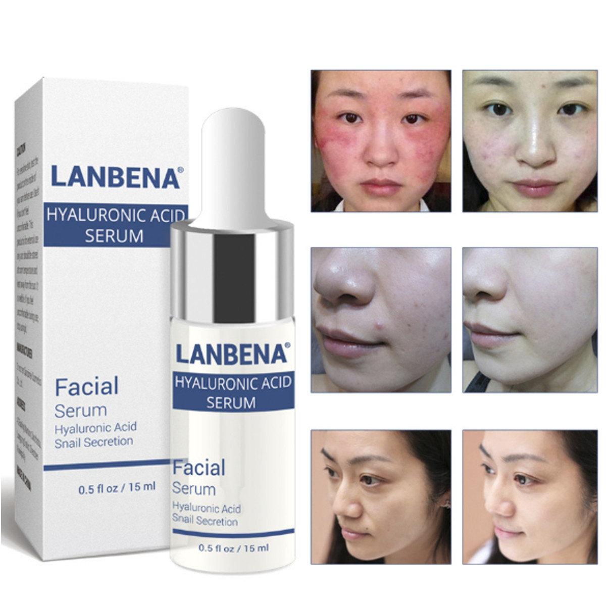 Hyaluronic Acid Snail Essence Moisturizing Acne Treatment Repair Whitening Anti-Aging Wrinkle Care