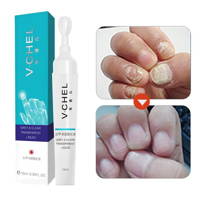Fungal Nail Treatment Pen Essence Foot Whitening Toe Nail Fungus Removal Feet Care