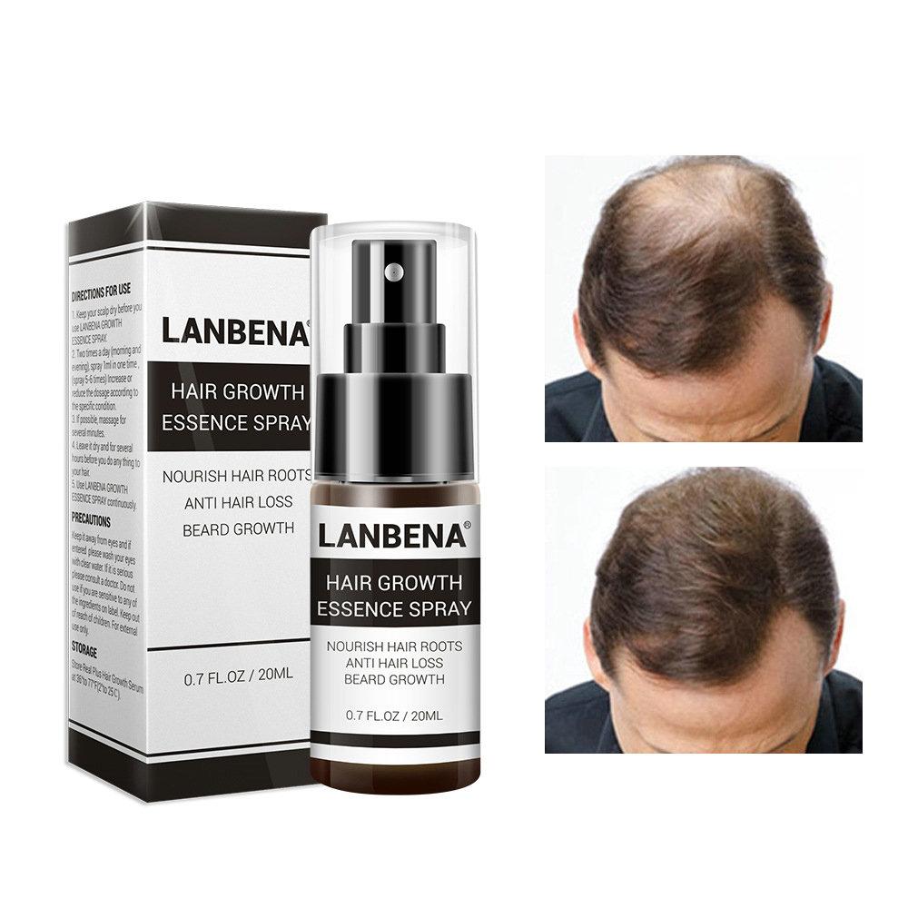 Rapid Growth Hair Essence Spray Anti Hair Loss Hair Care 100% Natural Herbal Extract Essence Spray