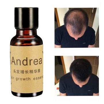 Fast Hair Growth Essence Oil Men Women